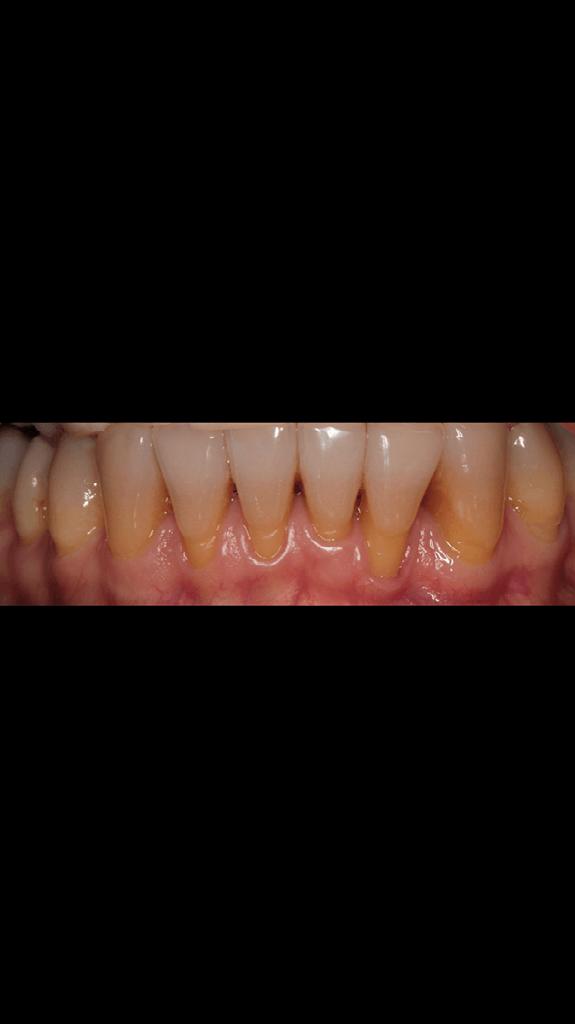 Закрытие рецессий (оголений корней зубов)